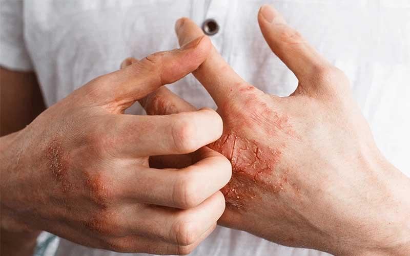 درمان ترک های پوست